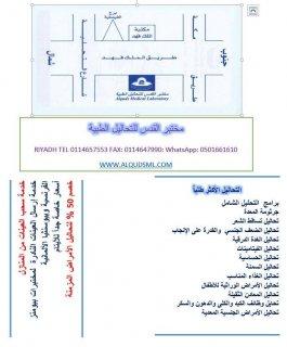 مختبر القدس للتحاليل الطبية بالرياض - برنامج التحليل الشامل