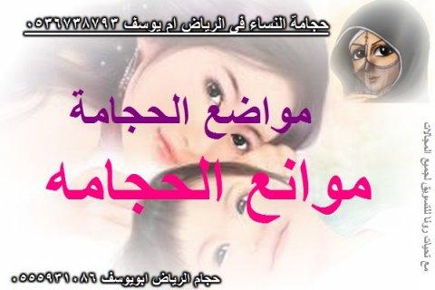 حجامه نسائيه فى الرياض ام يوسف 0536738793