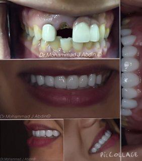 د.محمد عابدين أخصائي تركيبات الأسنان الثابته و المتحركة ، تجميل وزراعة الأسنان